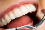 Dental Integration into CCOs Expected to Jumpstart Evolution