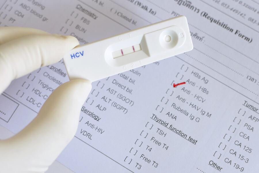 тест-система на гепатит С
